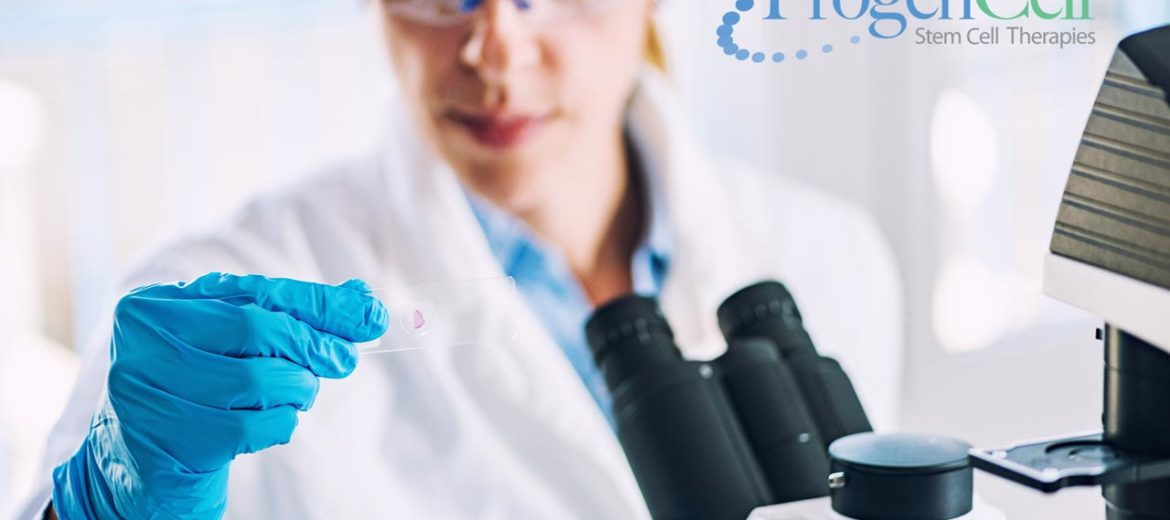 Stem Cell Therapy Myths